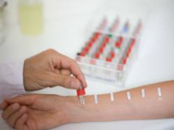 тест на алергію до прополісу