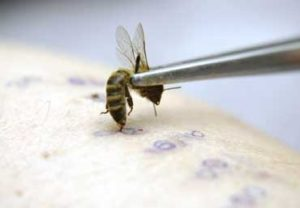 Апітерапія бджолами