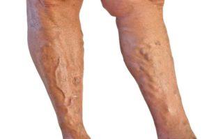 апітерапія варикозне розширення вен: лікування